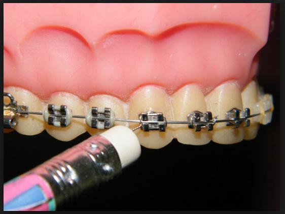 Dental Braces And Poking Wires Mesa Az Orthodontics Dental Braces Orthodontics Emergency Care