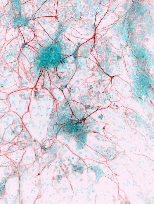 Stem cell-derived neurons, micrograph Art Print by Science Photo Library