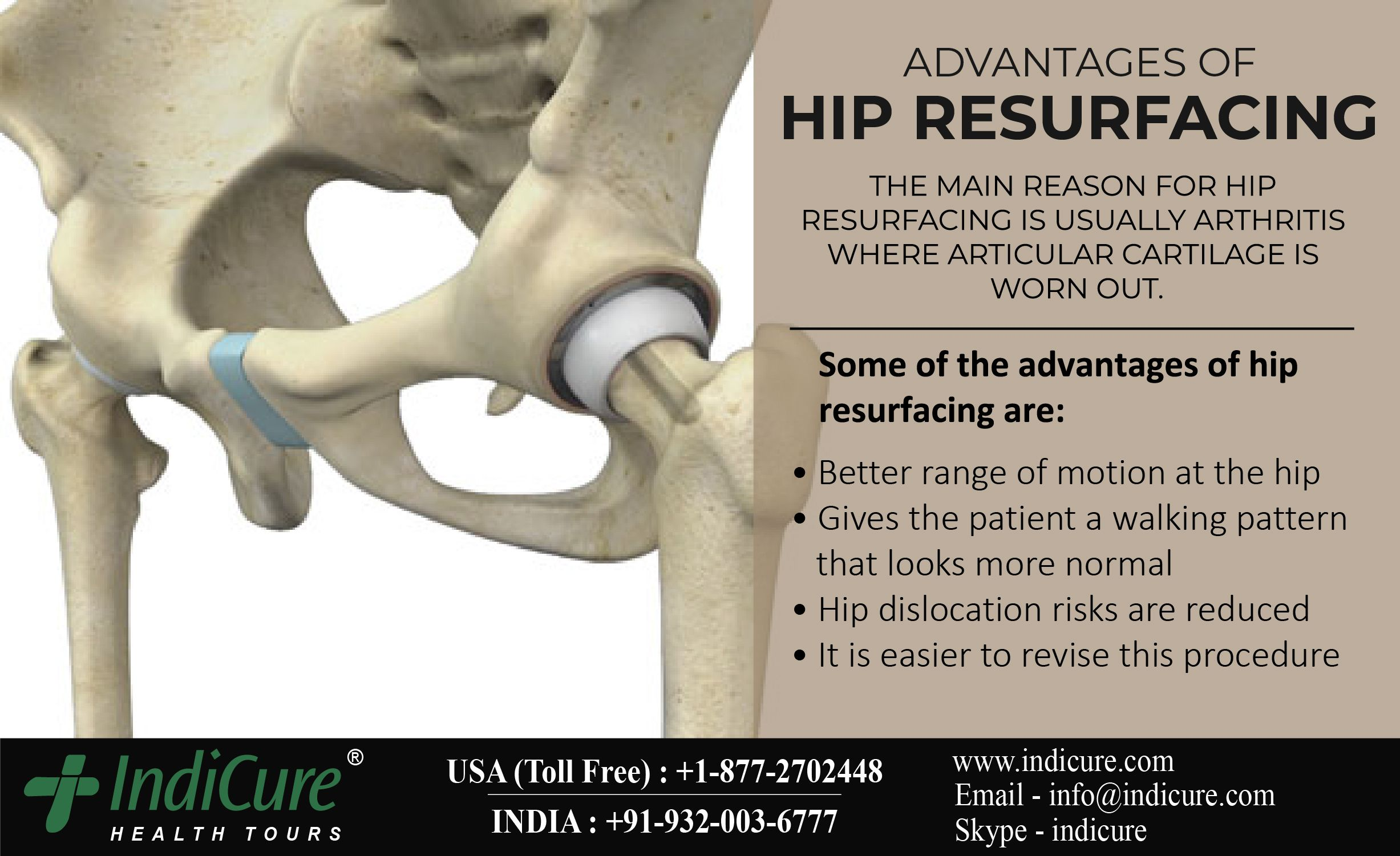 27++ Can you have hip replacement with osteoporosis ideas in 2021