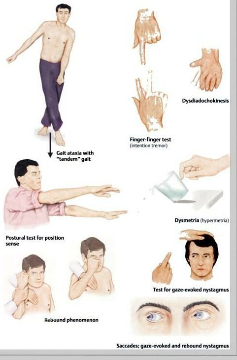 cerebellar signs: gait ataxia