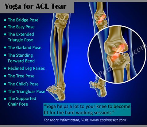 Yoga For Acl Tear Read Http Www Epainassist Com Sports Injuries Knee Injuries Acl Tear Exercises Acl Tear Knee Injury Recovery Acl Surgery Recovery