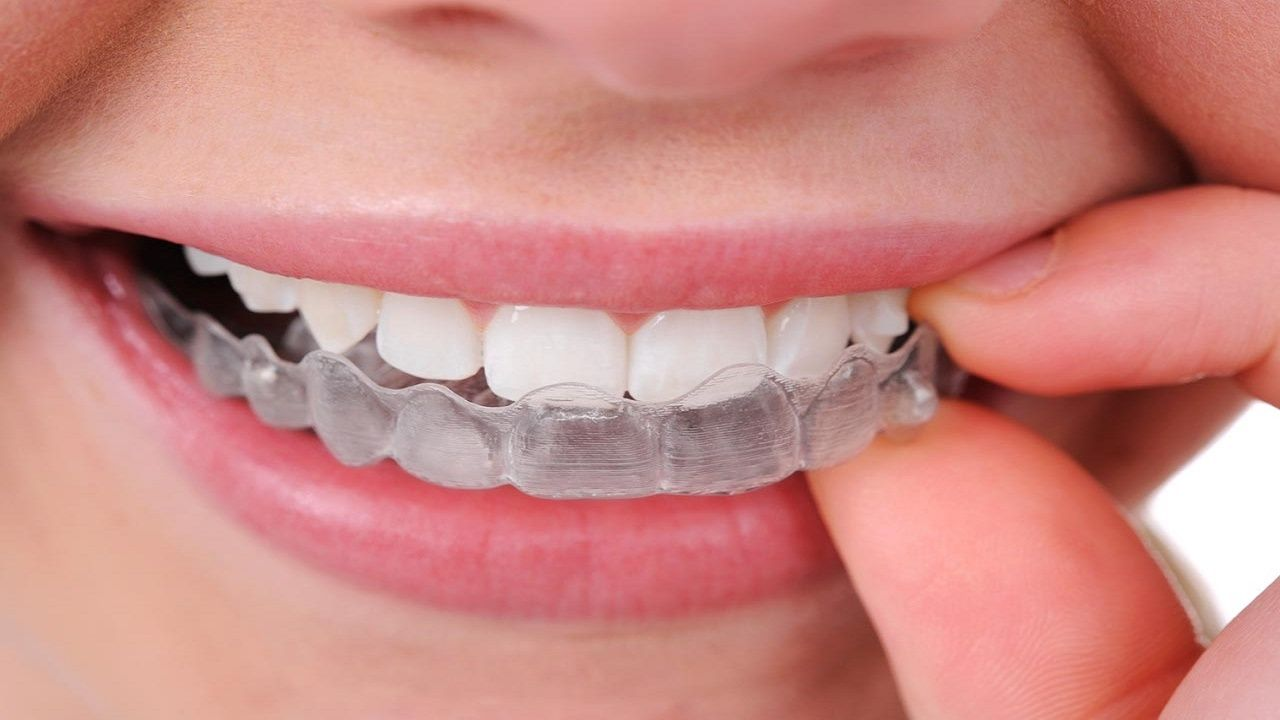 How to Get Straight Teeth Without Braces with Invisalign