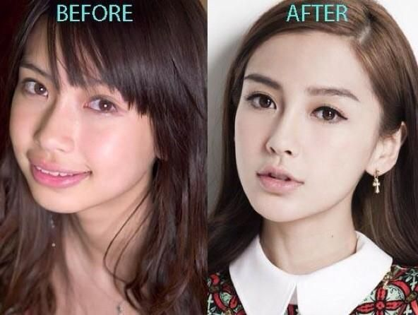 05 Angelababy Plastic Surgery Plastic Surgery In 2019