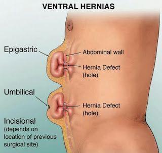 Epigastric Hernia Natural Treatment