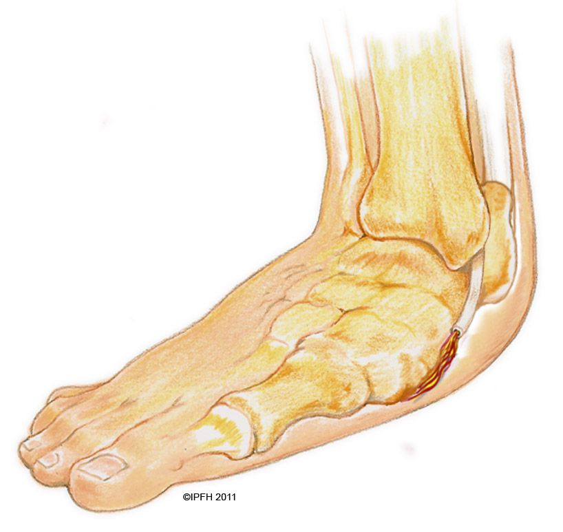 Posterior Tibial Tendon Dysfunction (PTTD) also known as Adult ...