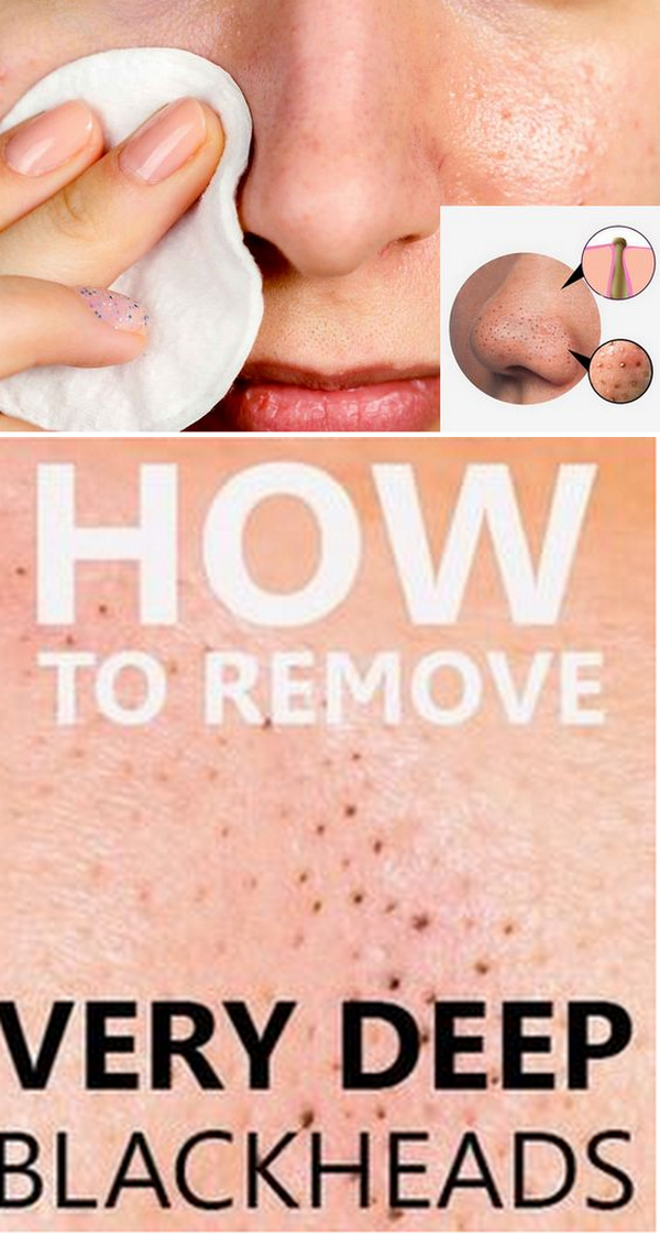 e9057346b6c8a0a28ff37e110dab9dd1 - How To Get Rid Of Pimples On The Private Area