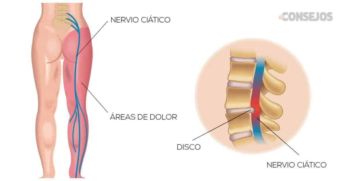 Pomada Casera Para El Dolor En La Ciática Con Solo 4 Ingredientes Dolor De Ciatica Ciatica Dolor Muscular