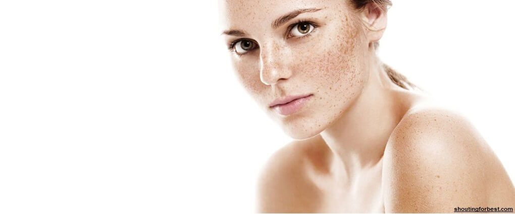 Unlike most types of skin problems, pigmentation will dance