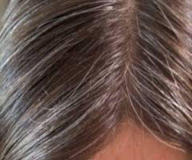 white hair treatment,hair fall solution,white hair dye,white grey ...