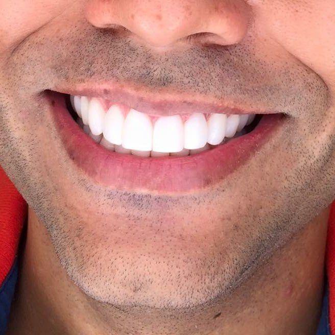 наши красивые мужские улыбки и зубы фото рейд приготовил вот