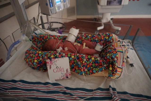 A little preemie girl born at 33 weeks 1 day. First day of ...