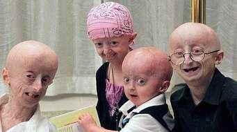 Quick guide to Progeria  