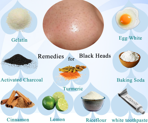 How To Clear Up Blackheads Best Home Remedies To Remove Blackheads