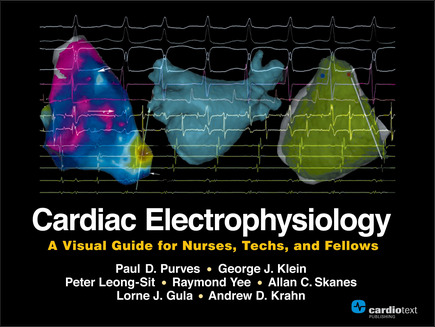 Cardiac Electrophysiology A Visual Guide For Nurses Techs And Fellows Nurse Cardiac Nursing Nursing Profession