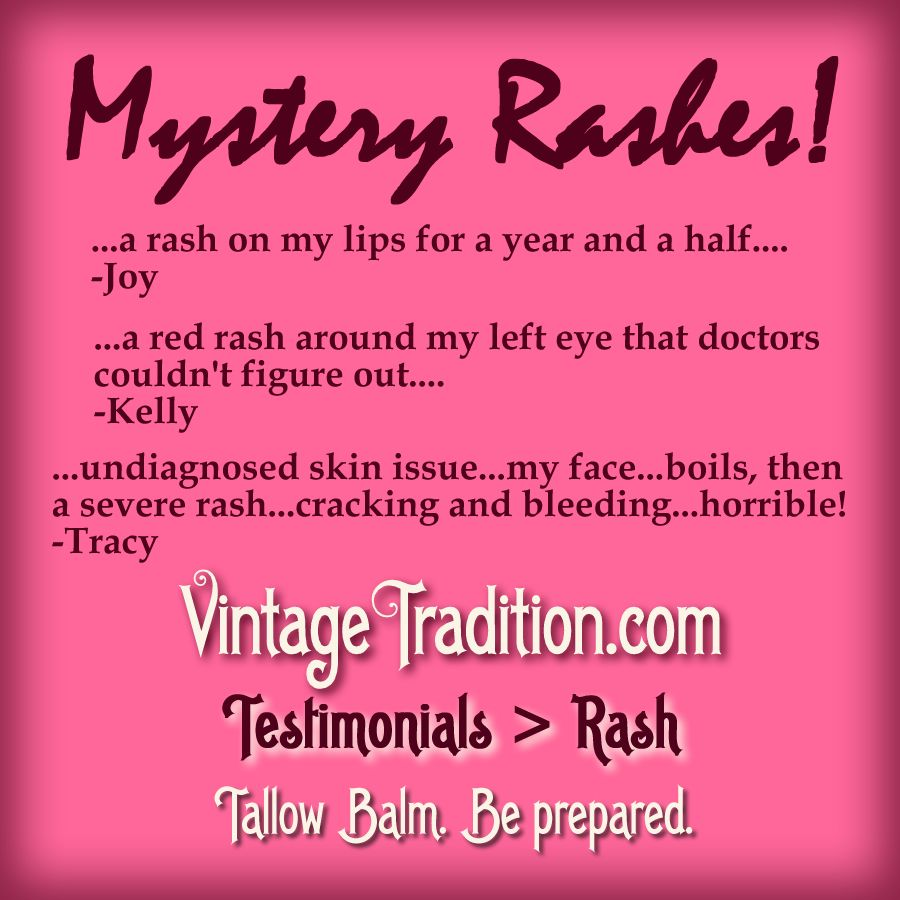 Tallow Balm. Be Prepared For Any Skin Situation