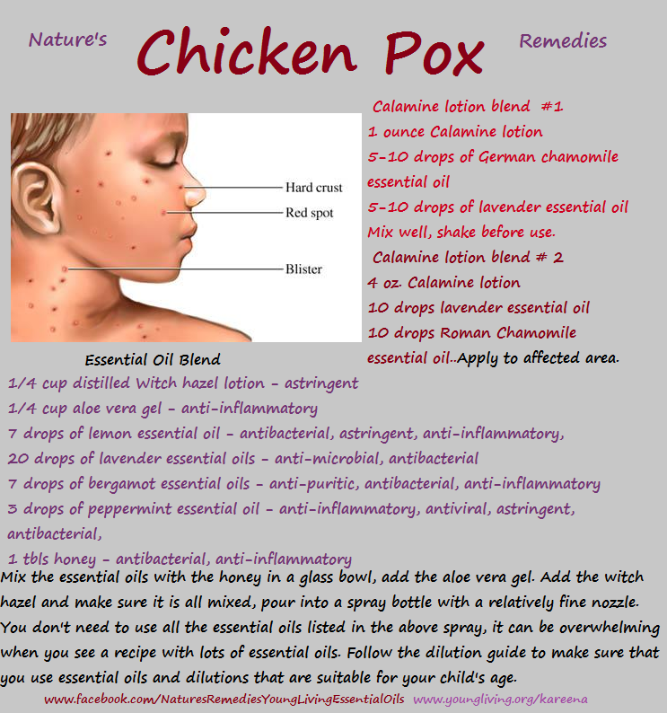 Natural Remedy for Chicken Pox contact me for any oils ...