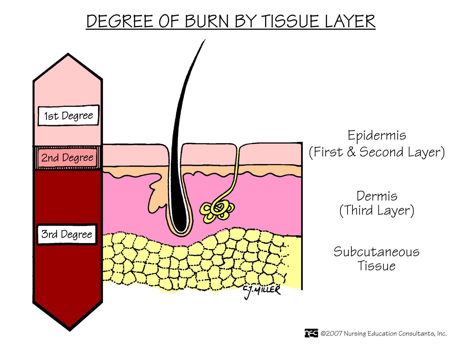 2nd Degree Burn Diagram