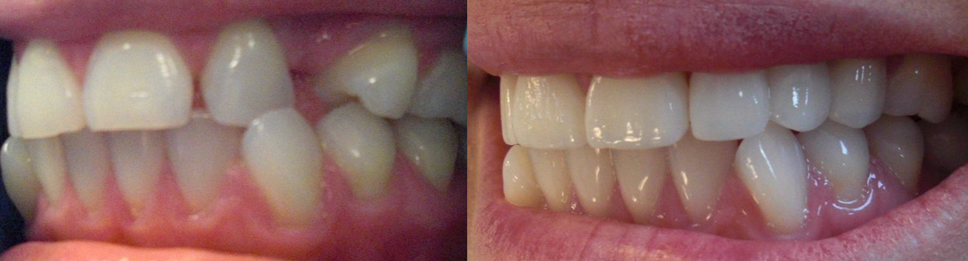 Fix gaps in teeth without braces! Lingual braces, Dental