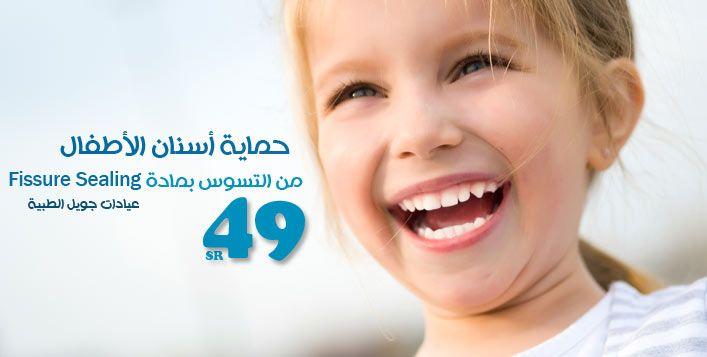 حافظ على إبتسامة أطفالك بيضاء مشرقة مع جلسة تغطية أسنان الاطفال بمادة Fissure Sealing للحماية من التسوس مع عيادات جويل الطبية مقابل Dental Sealant Tooth Decay