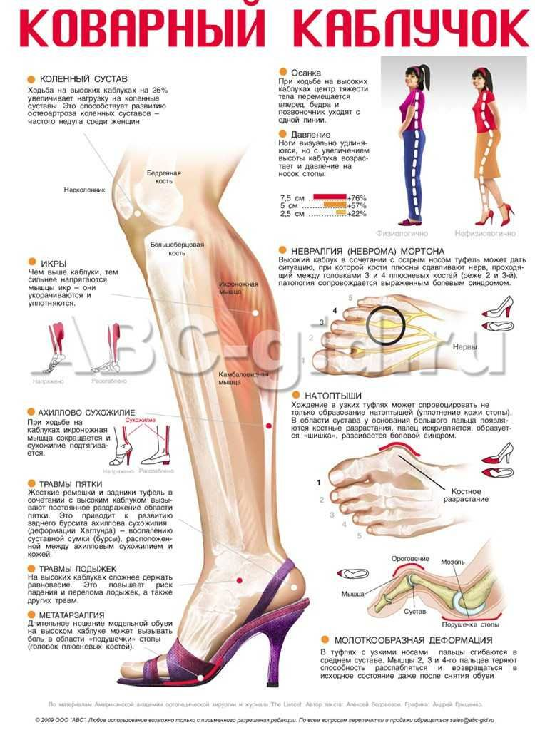 Pin de Lina Uribe en Anatomía | Pinterest | Anatomía