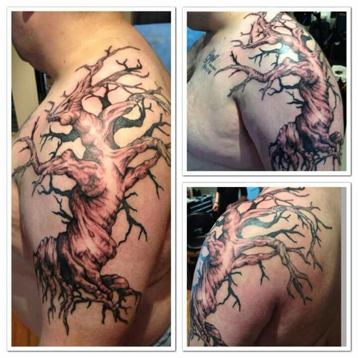 Tattoo Removal Canberra