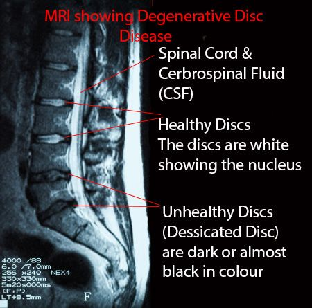 Mri Showing The Lower Back With Healthy Disc Near The Top