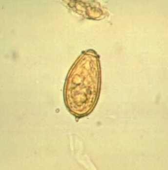 pinworm mikrobiológia