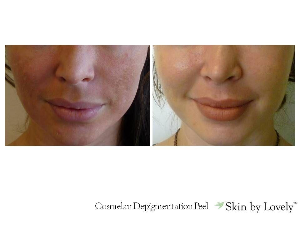 Cosmelan Depigmentation Peel Facial Aesthetics Botox Clinic Skin