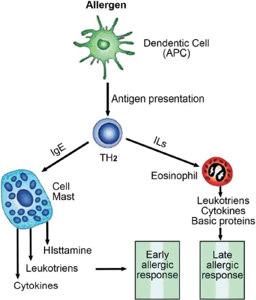 Pathophysiology of asthma APC= Antigen presenting cell ...