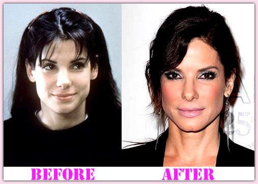 Pin On Celebrity Plastic Surgery