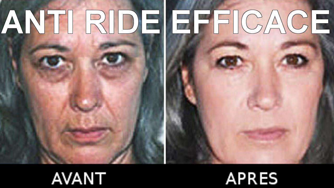 Anti Ride Efficace Un Anti Rides Pour Estomper Les Effets Du Vieillissement Anti Ride Efficace Anti Ride Creme Anti Ride Efficace