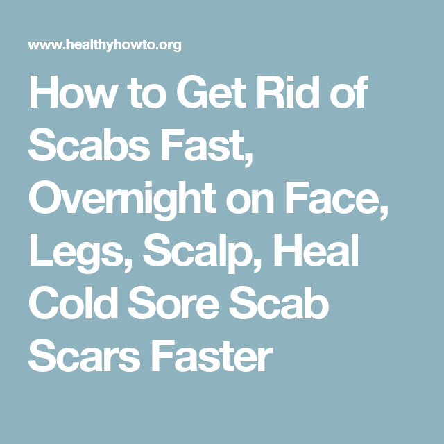 How To Get Rid Of Scabs On Scalp Naturally