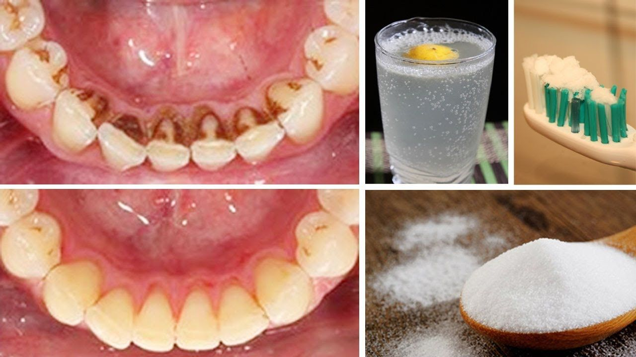 How to remove plaque from teeth at home naturally teeth