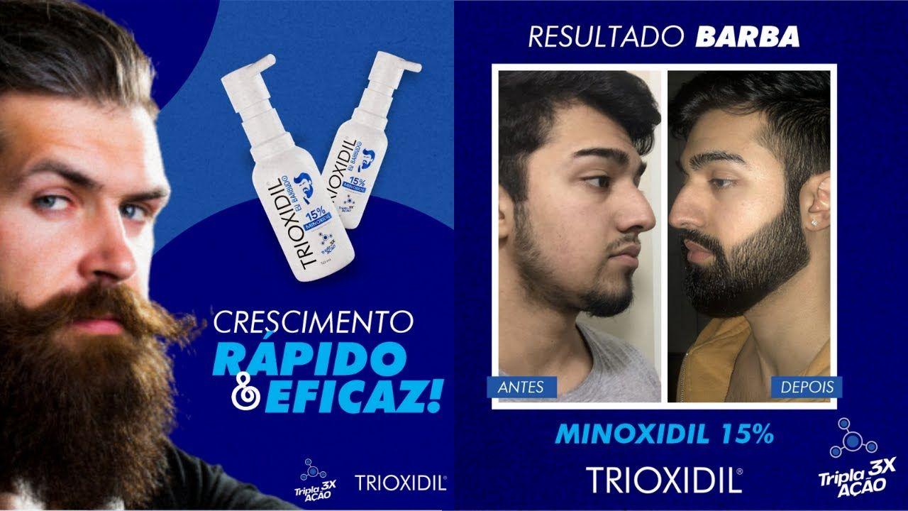 trioxidil como tomar