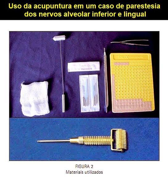 Uso da acupuntura em um caso de parestesia dos nervos alveolar inferior e lingual | OVI Dental