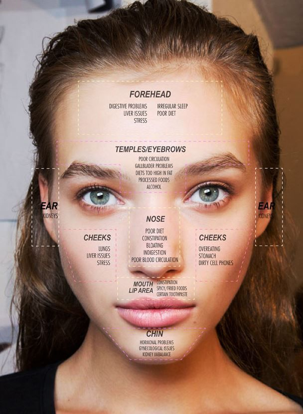 Face mapping helped me get my acne under control also what your is telling you in beauty hacks rh pinterest