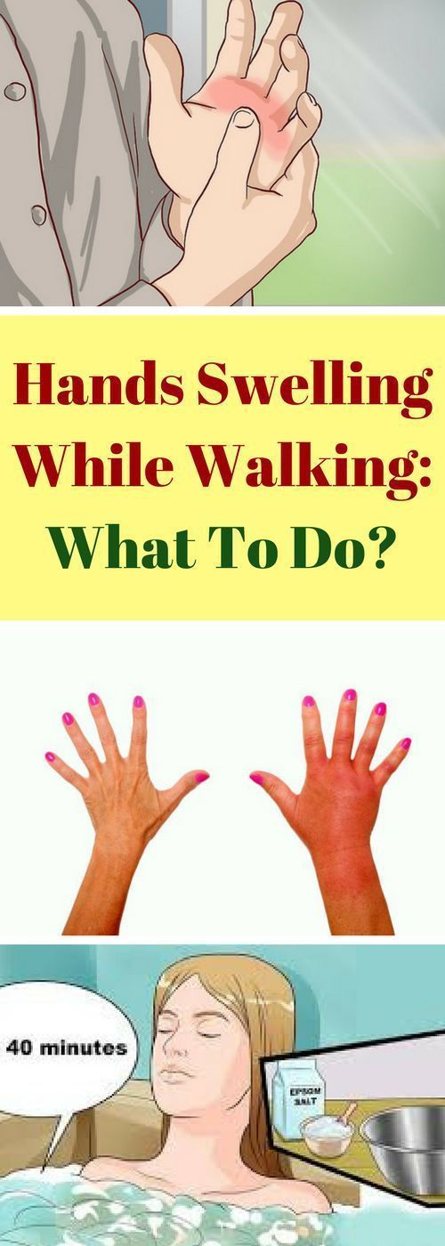 Hands Swelling While Walking: What To Do!!!?  #lifestyle  #fitness