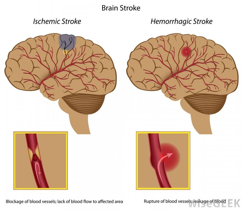 A diagram of an ischemic stroke and a hemorrhagic stroke