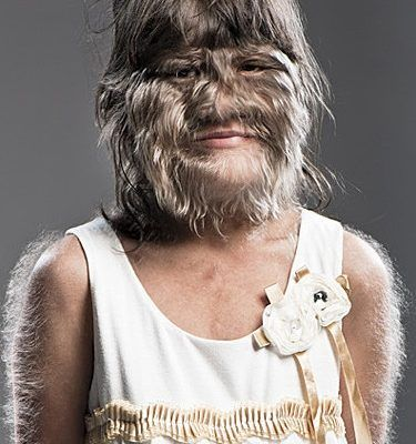 Hairiest Teenager Guiness World Records World Records