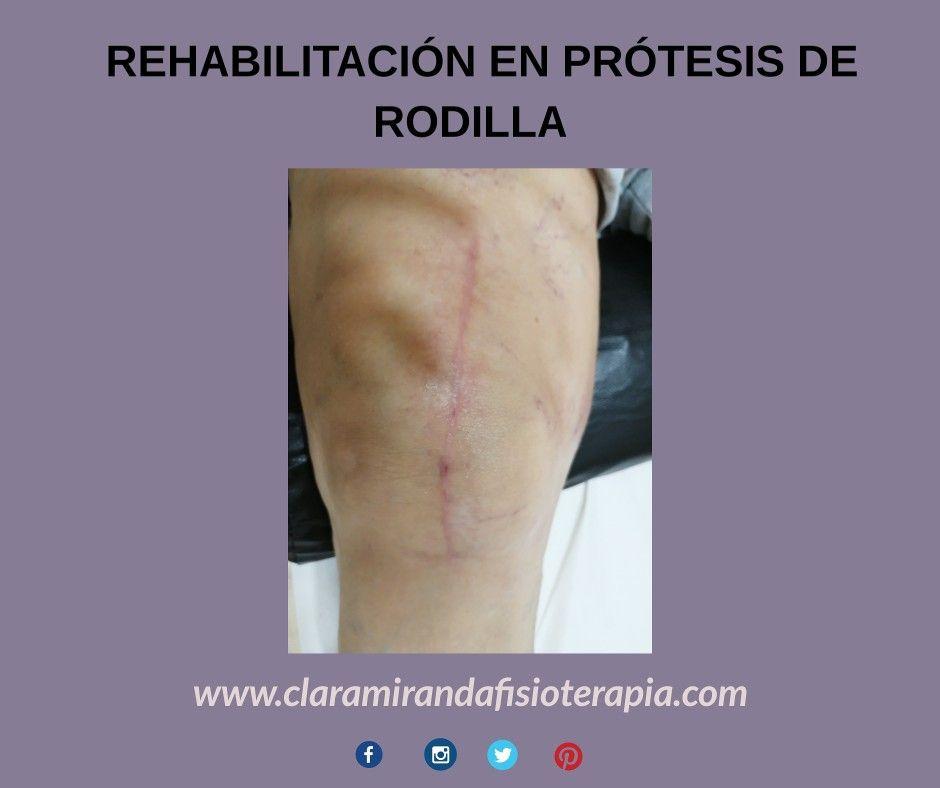 Rehabilitación Tras Cirugía De Prótesis De Rodilla Centro De Fisioterapia Fisioterapia Cirugia