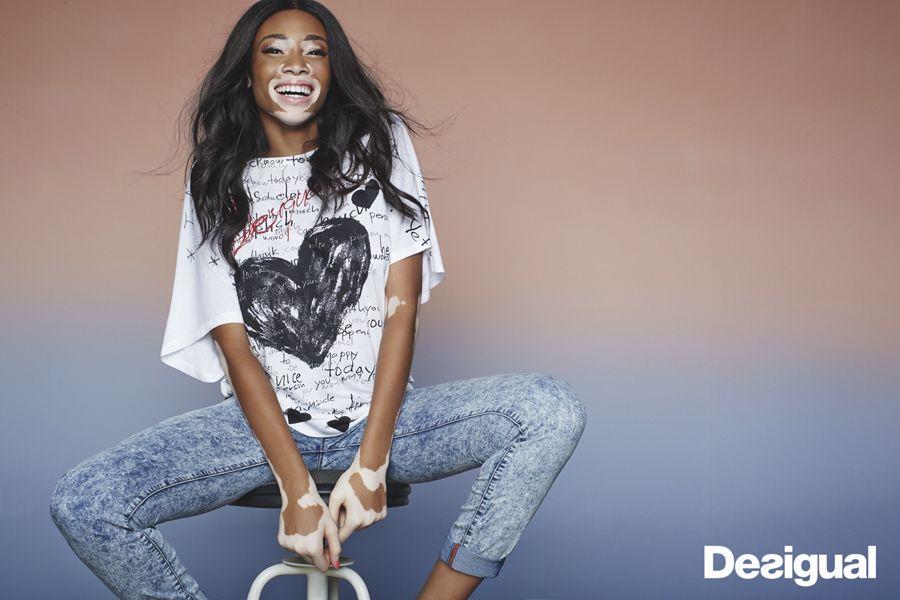 Fang großhandel online schnell verkaufend Winnie Harlow - top model with vitiligo - Desigual print ...