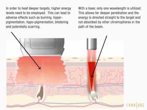 Ultimate Laser - Depilação Laser: DEPILAÇÃO A LASER