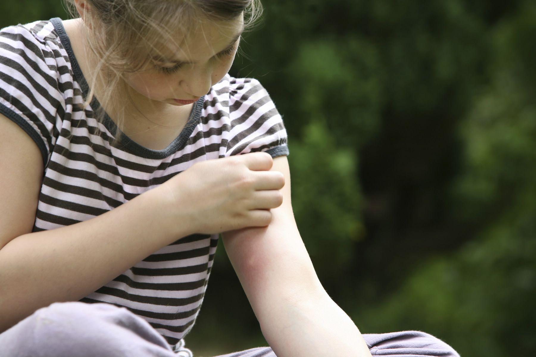 AIRLIFE te dice. ¿qué es la atopia? Se define como la predisposición genética a producir inmunoglobulina E frente a los alérgenos del aire, afecta a un 30% de la población y puede existir independientemente de se presente alergia o no.