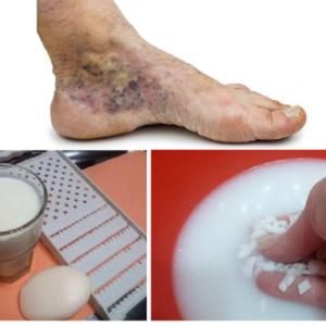 Așa NU! 5 Obiceiuri care pot forma și agrava venele varicoase