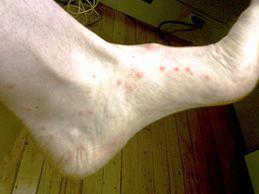 Sand Flea Bites On Humans Pictures Treatment And Prevention Fleas Flea Repellent Sand Fleas