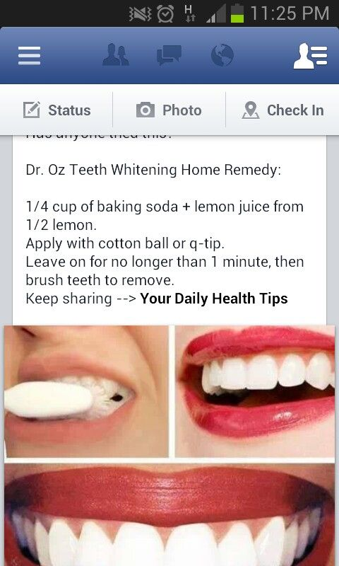 Natural Teetg Whitening Baking Soda And Lemon Juice Health Tips