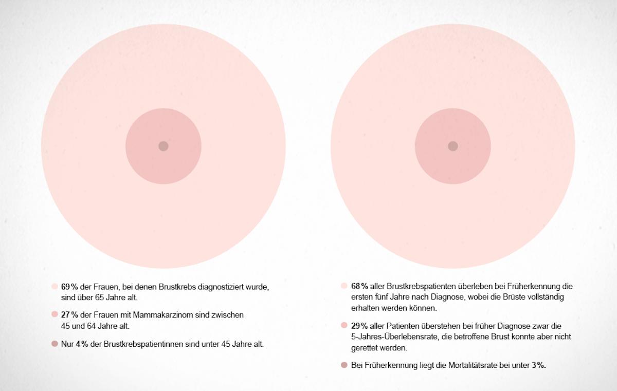 Brustkrebs Prävention Infografik – Mammographie Screening Hamburg