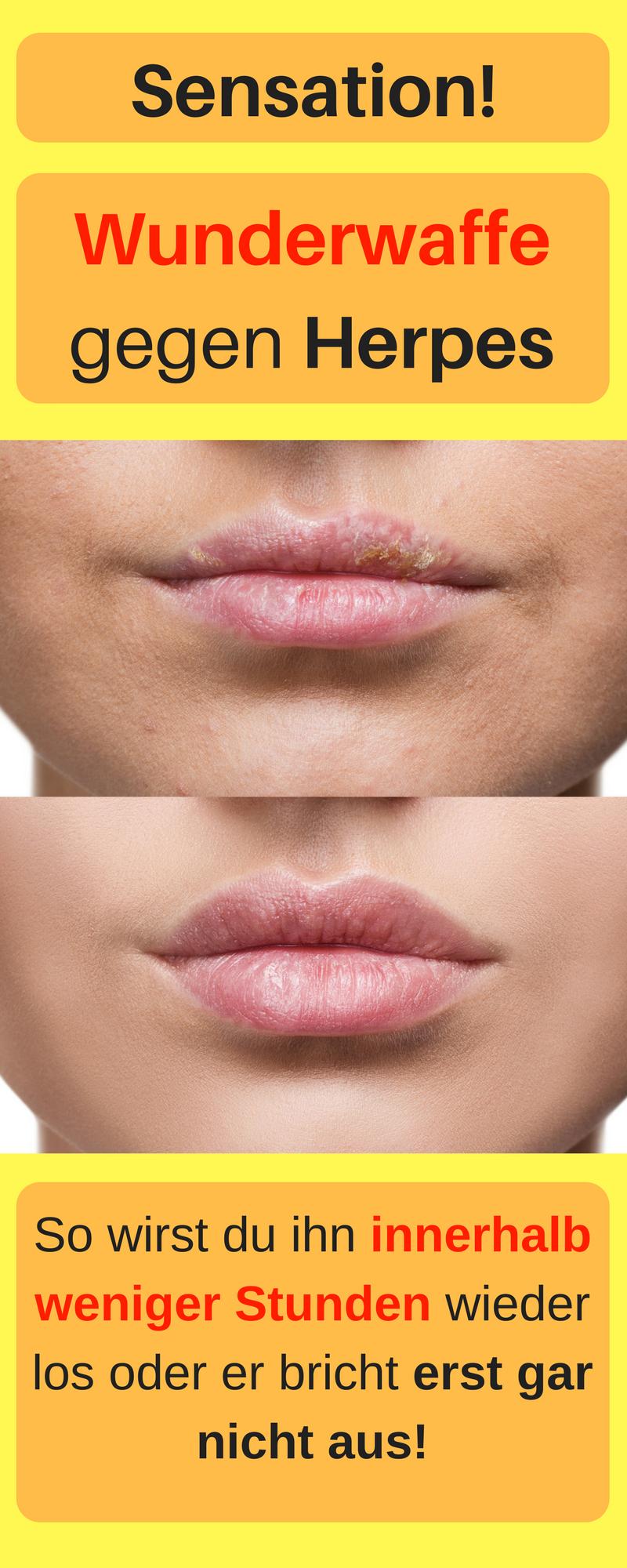 Was tun gegen lippenherpes