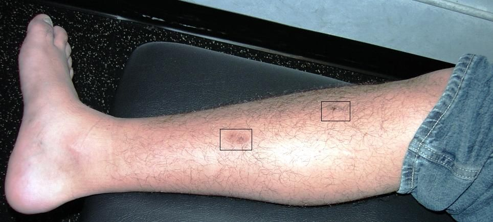 You're Involved In A Self-Defense Shooting And You've Been ... |Gunshot Wound Leg