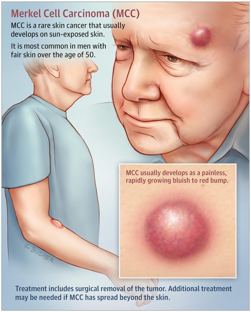 Merkel Cell Carcinoma Infographic